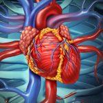 Iran Heart Surgery Tourism